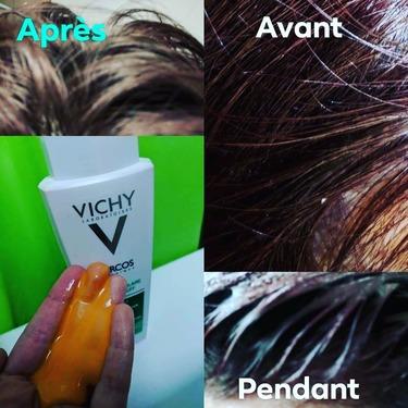 Vichy Dercos Anti-Dandruff Shampoo for Normal to Dry Hair