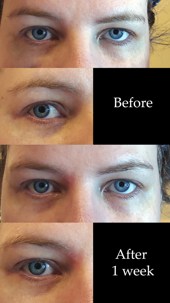 L Oreal Revitalift Cicacream Skin Repair Eye Cream Reviews In Eye