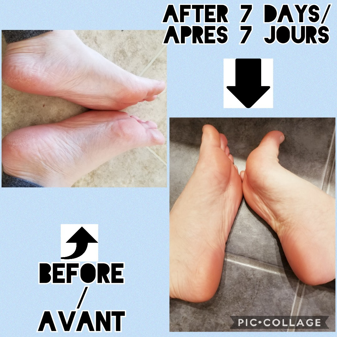 Cracked Heel Rescue Foot Cream reviews