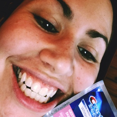 Crest Whitestrips Gentle Routine Reviews In Teeth Whitening