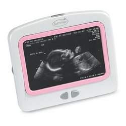 Heart-to-Heart Digital Prenatal Listening System