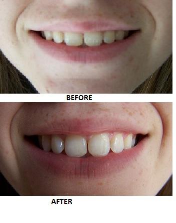 Полоски для зубов лучше