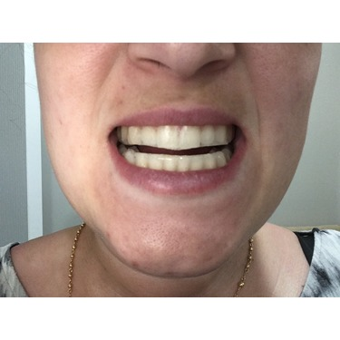 Equate Teeth Whitening Strips Reviews In Teeth Whitening Chickadvisor
