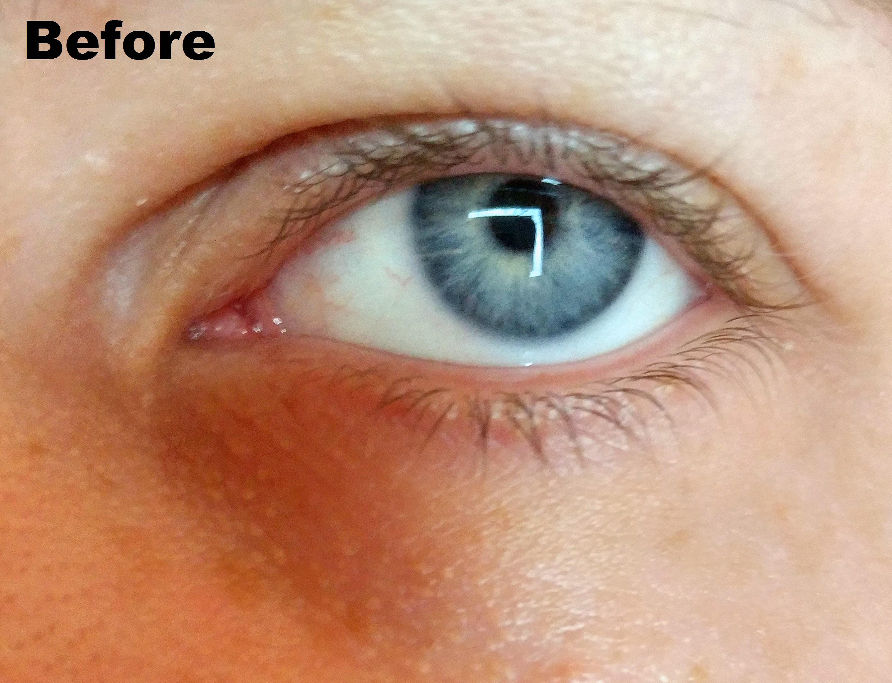 Bioderma Sensibio Eye Contour Gel Reviews In Eye Creams