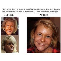 The Skin Regime