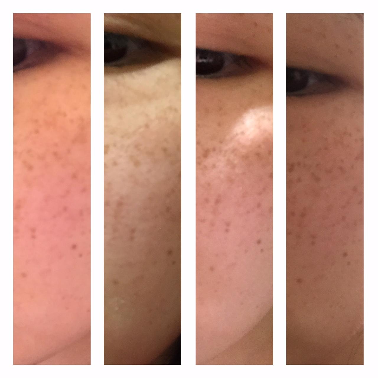 Dark spot corrector reviews by dermatologist - Vichy Proeven Advanced Daily Dark Spot Corrector Image Gallery 223 Reviews