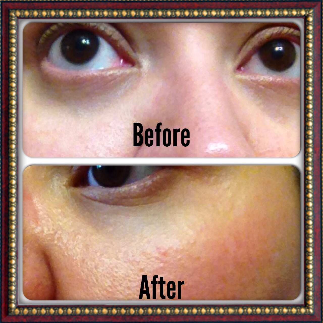 Cerave Eye Cream Reviews Cosmetics Pictranslator