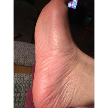 Amopé Pedi Perfect Electronic Foot File