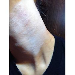 Skinfix Gentle Eczema Balm
