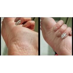 Nail-Aid 3-Minute Pedi Peel
