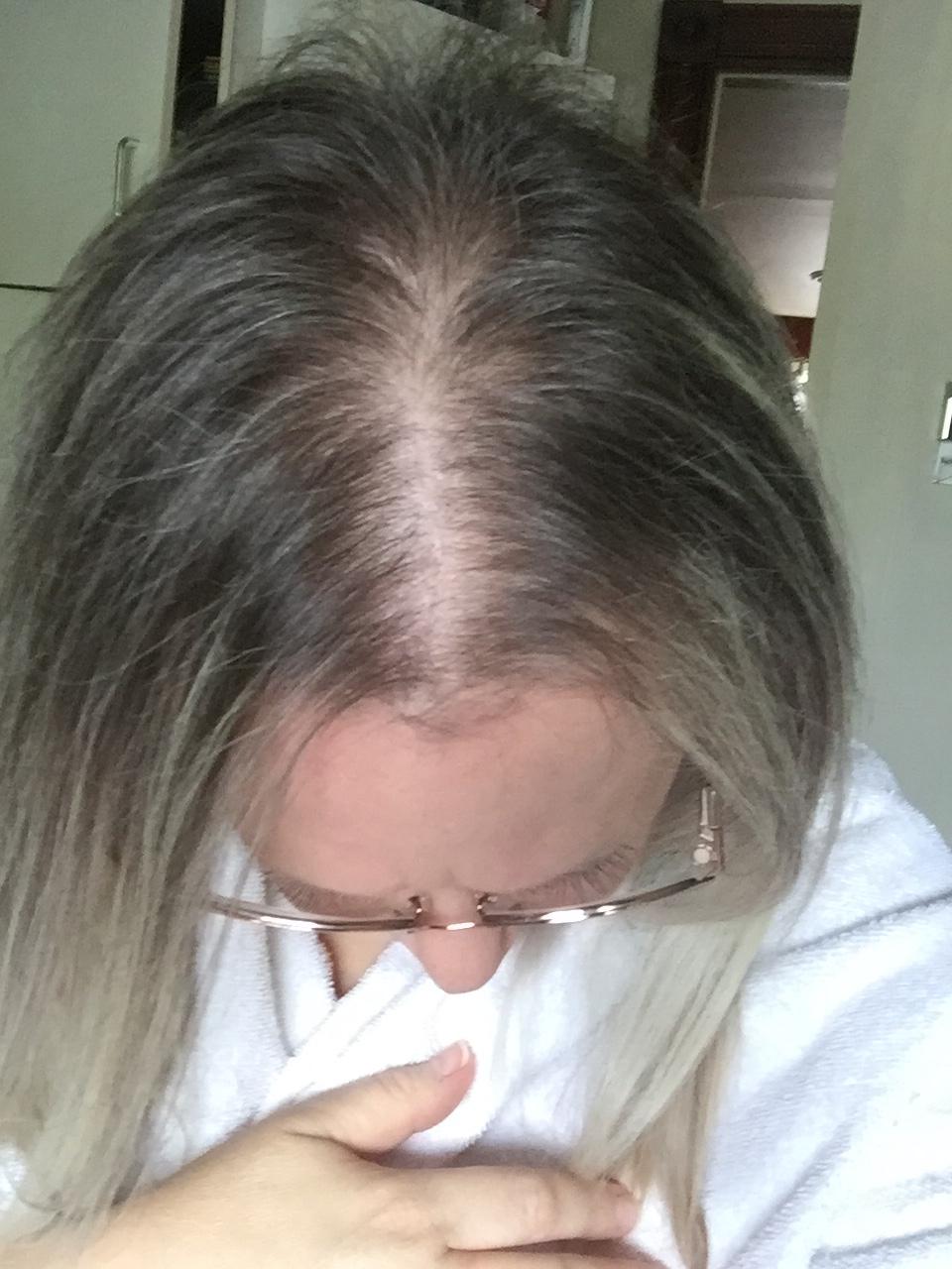 Women's ROGAINE® Foam 5% Reviews In Hair Care