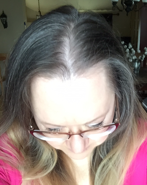 Womens Rogaine Foam 5 Reviews In Hair Care Chickadvisor
