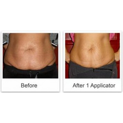 Ultimate Body Wraps
