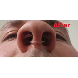 WoodyKnows Invisible Nasal Dilators