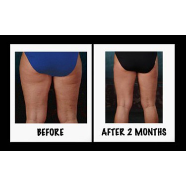 It Works Ultimate Applicator