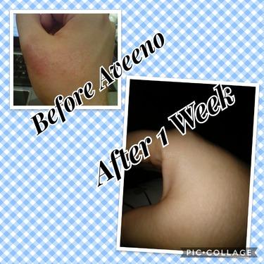 AVEENO Eczema Care Itch Relief Balm